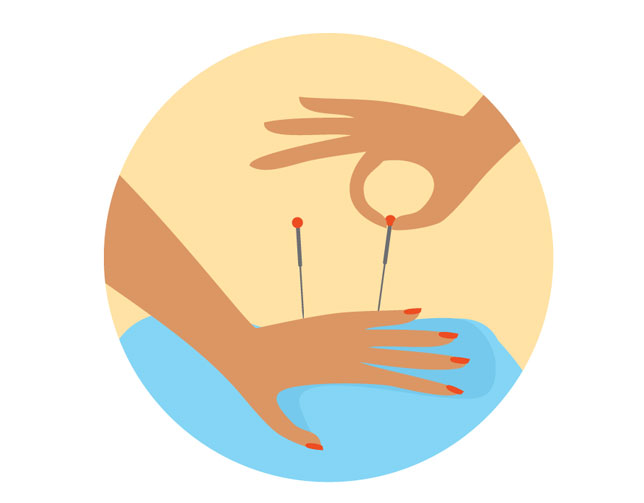 Acupuncture hand illustration